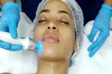 radiofrecuencia facial ( foto 7 ) KILO